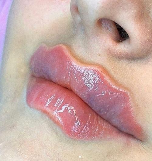 Как вам такие губки? Bizarre Beauty Trend заставляет русских девушек сходить с ума от них!